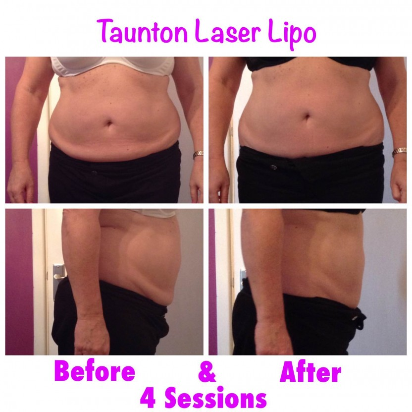 LASER LIPO BEFORE AND AFTER 1 TREATMENT